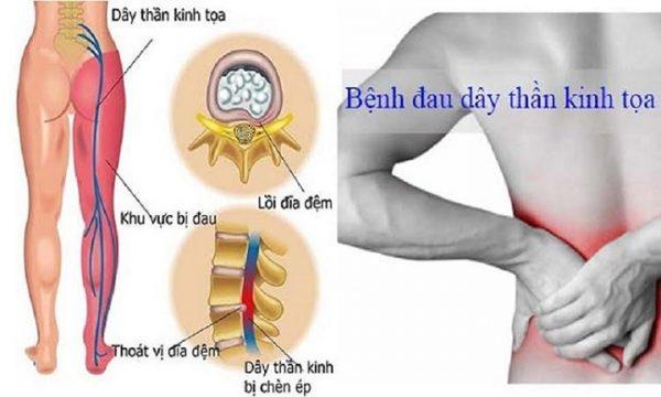 Nhận biết và điều trị đau thần kinh tọa