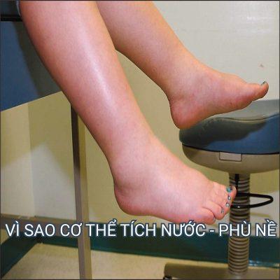 vi sao co the tich nuoc - phu ne